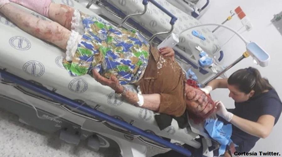Oliva Rojas Salinas, durante el traslado al hospital.